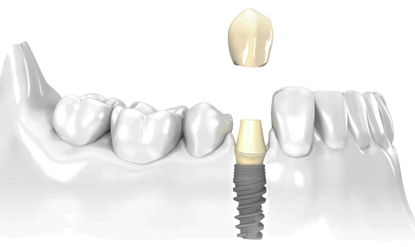 implantsingle